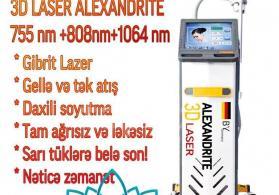 3D Buz lazer